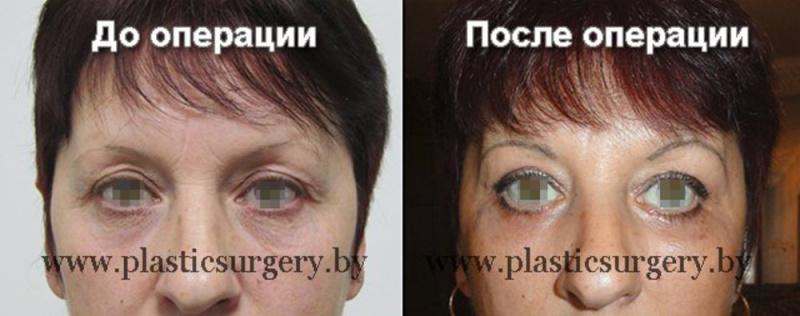 Пластическая хирургия в белоруссии цены и отзывы