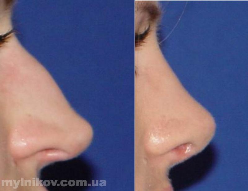 Как выправить носовую перегородку в домашних условиях