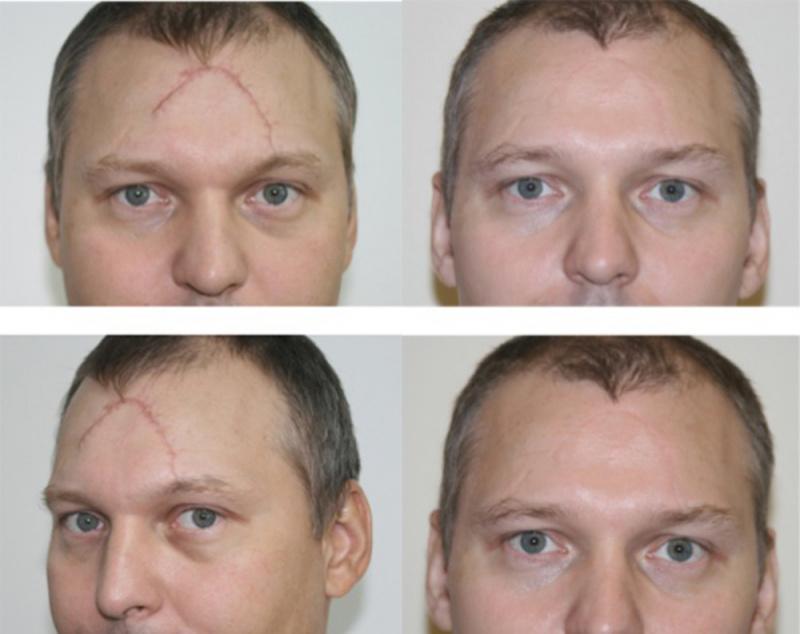 Лазерное удаление шрамов на лице цена