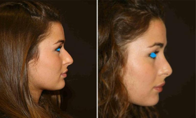 Как сделать нос уже без пластики