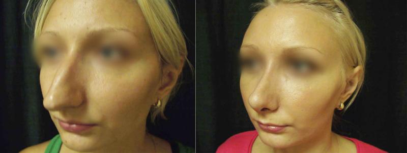 Агапов ринопластика фото до и после