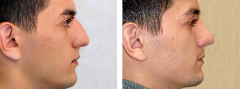 Ринопластика носа в армении