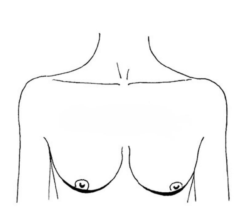 siski-forma-razmer
