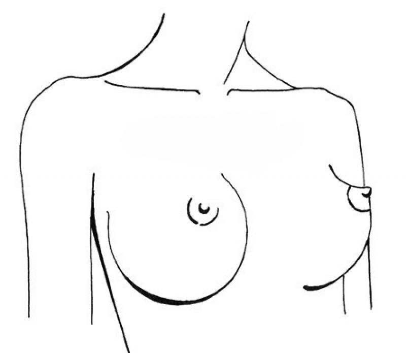 Формы женской груди.