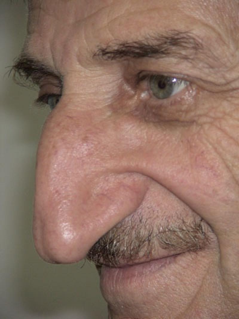 самый большой нос в мире у человека моем
