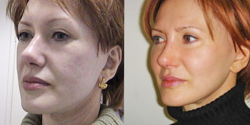 аптос фото до и после