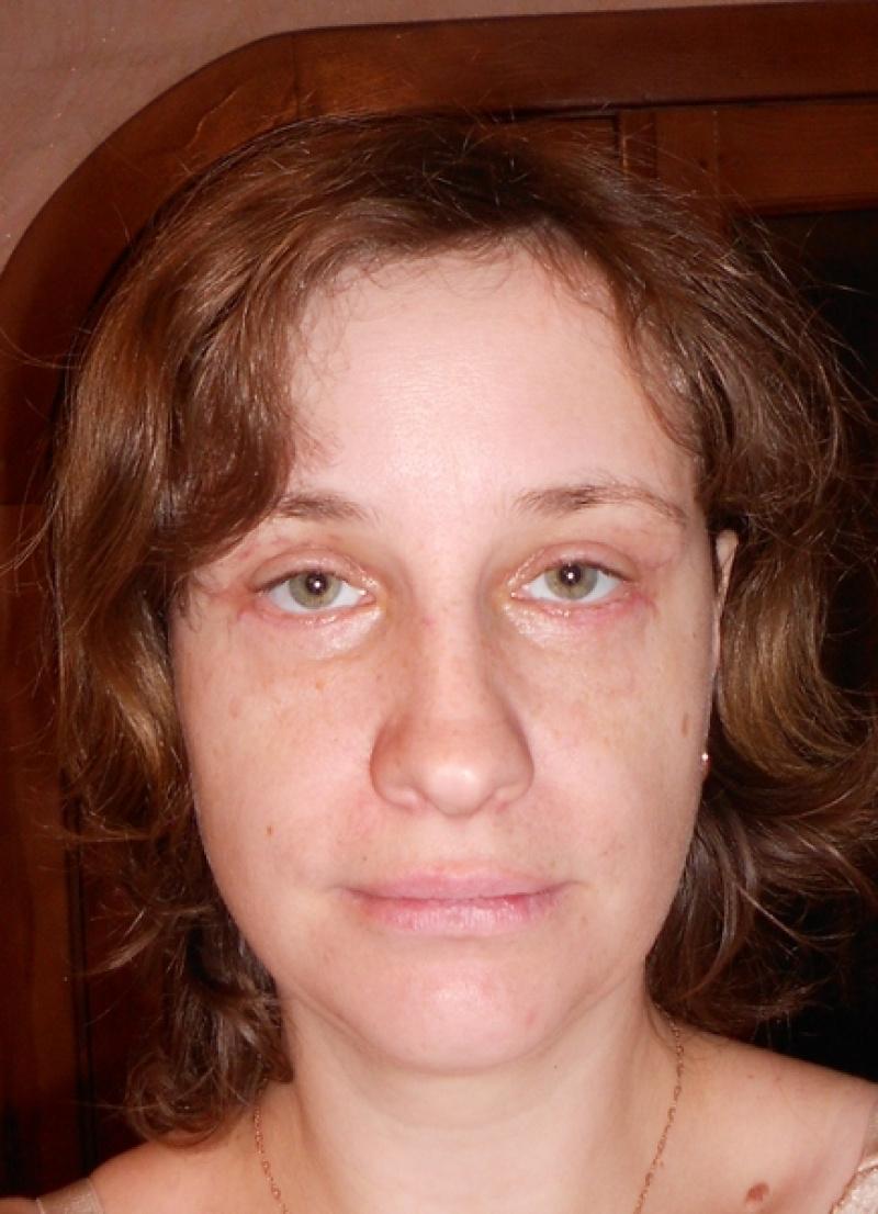 послеоперационный период после липосакции эндометрия яичника