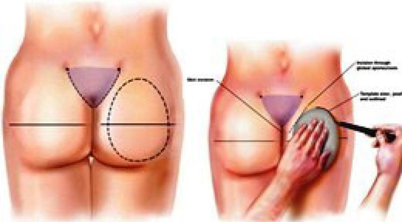 Маленькая грудь и лишний вес