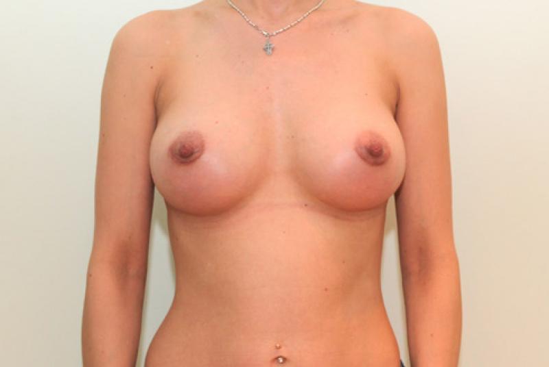 грудь 3го размера фото