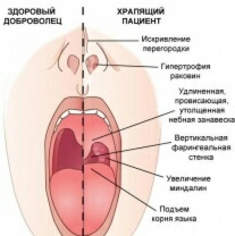 Увулопалатофарингопластика