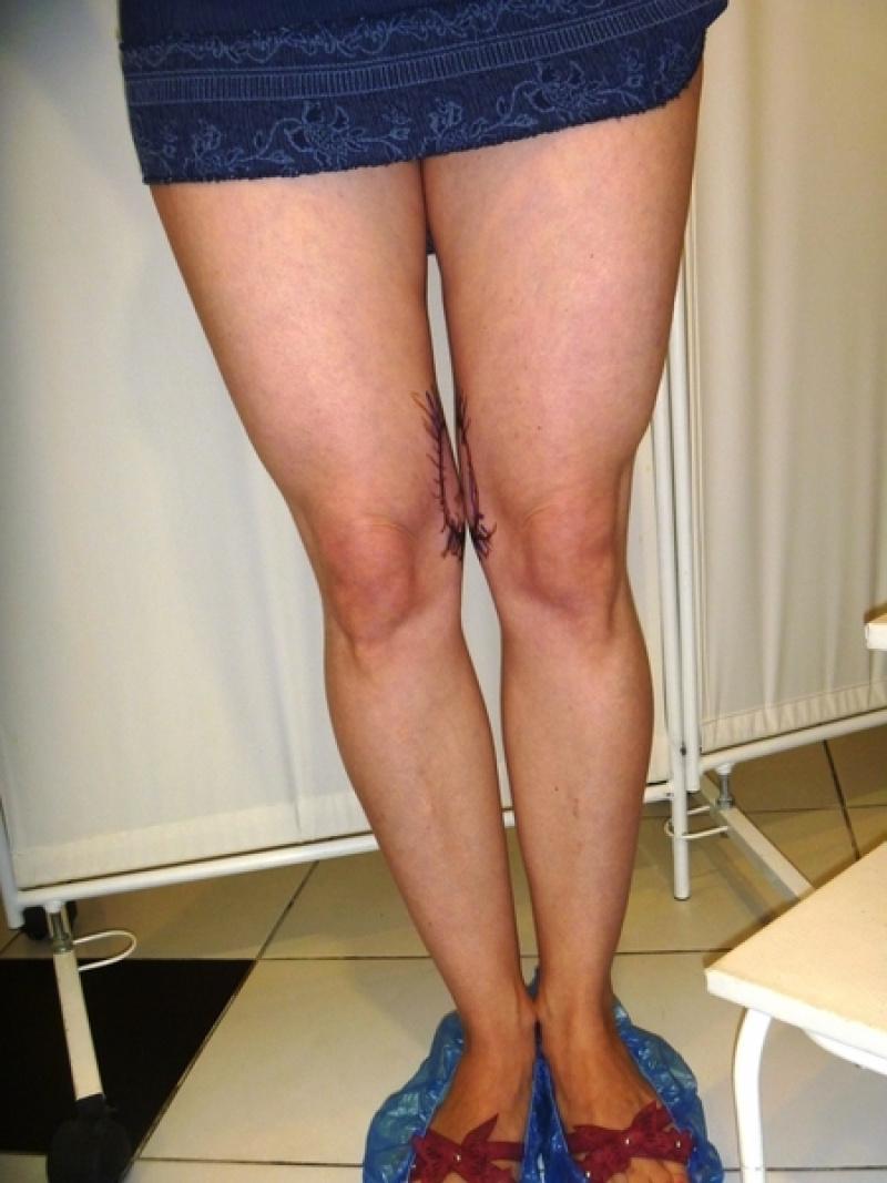 удостовериться коленные ушки фото популярна