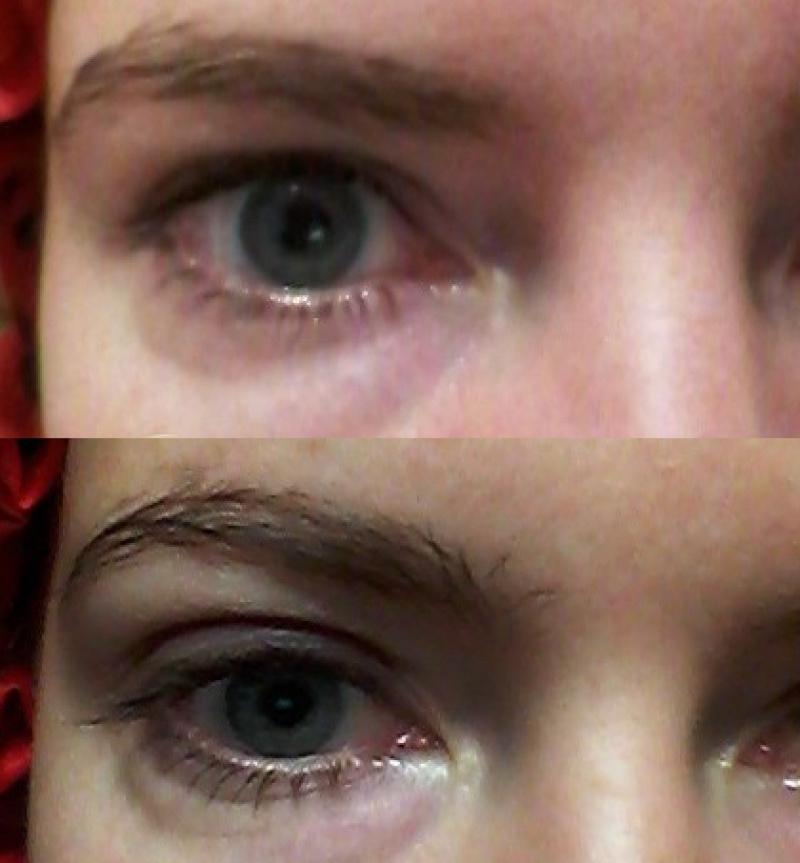 сохраняют грыжи под глазами удаление тому согревание