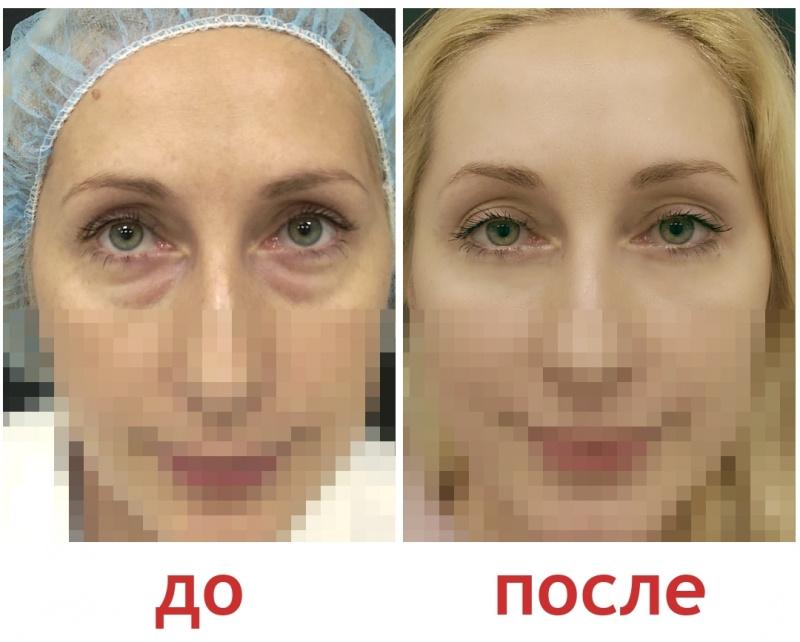 Блефаропластика фото до и после отзывы цена