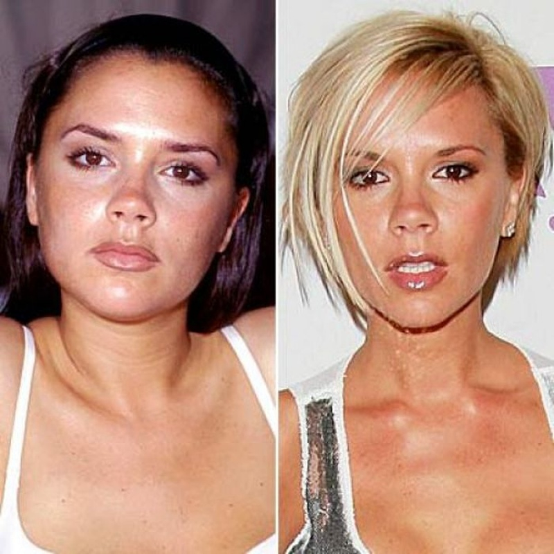 "photo of celebrities plastic surgery в""– 117937"