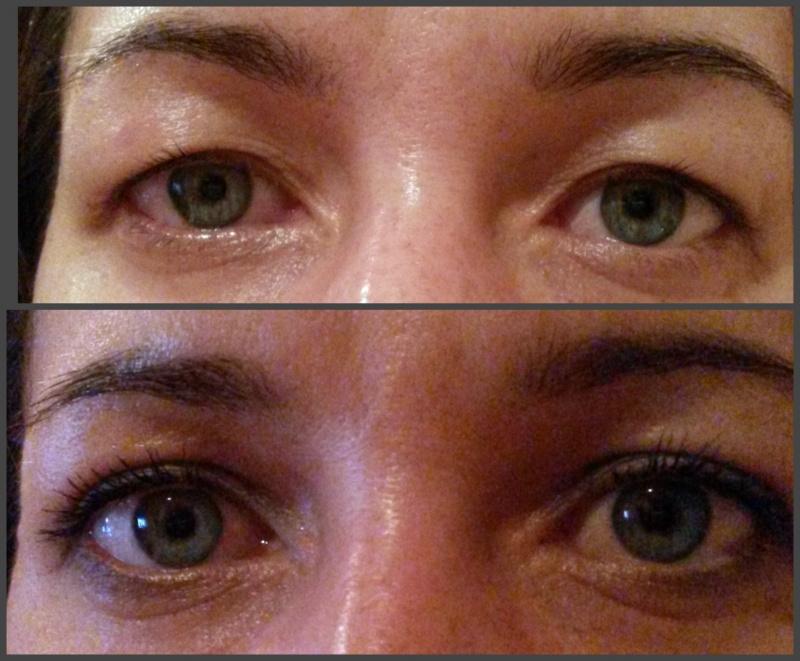 После блефаропластики глаза стали меньше
