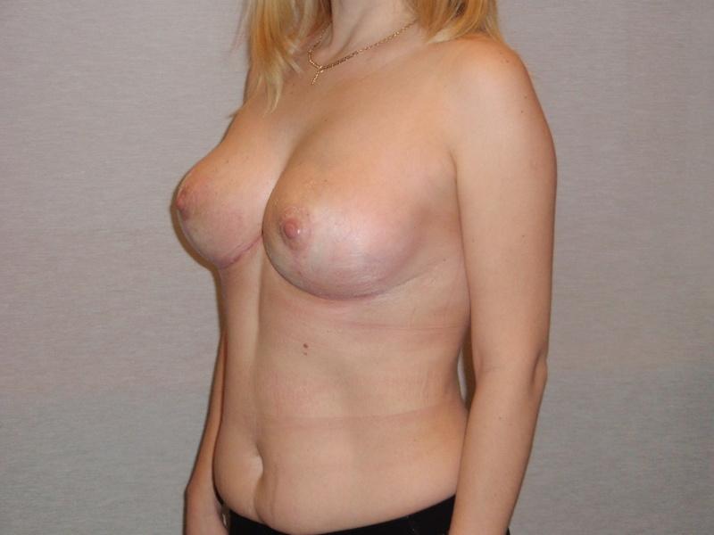 грудь только начала набухать фото