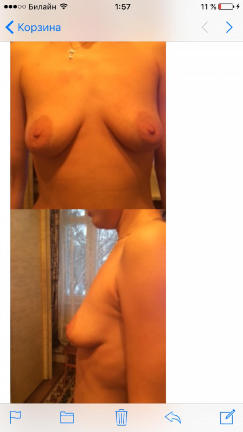 увеличение груди волгоград