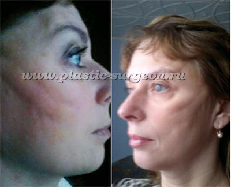 Подтяжка лица без операции нитями - Сайт о грыжах и их лечении | 648x800