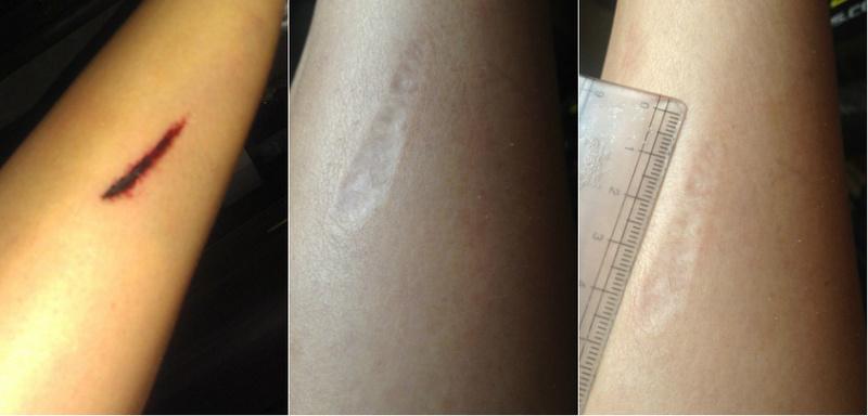 Удаление рубцов и шрамов лазером москва